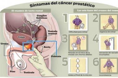a los cuantos años te puede dar cancer de prostata