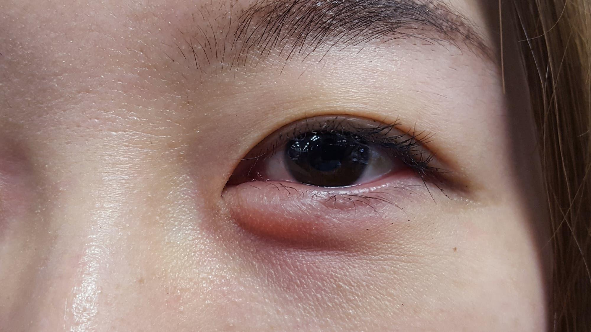 reaccion alergica con ronchas