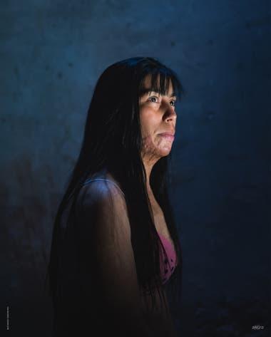 En la Argentina cada 30 horas una mujer muere víctima de violencia de género. Un 10% de esos asesinatos son causados por quemaduras. En la foto Belén Grosso